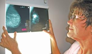 Odds of beating breast cancer better today than a decade ago
