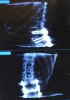 Pauline Wambolt's spine