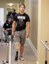 Koni Dole walks on a new prosthetic leg