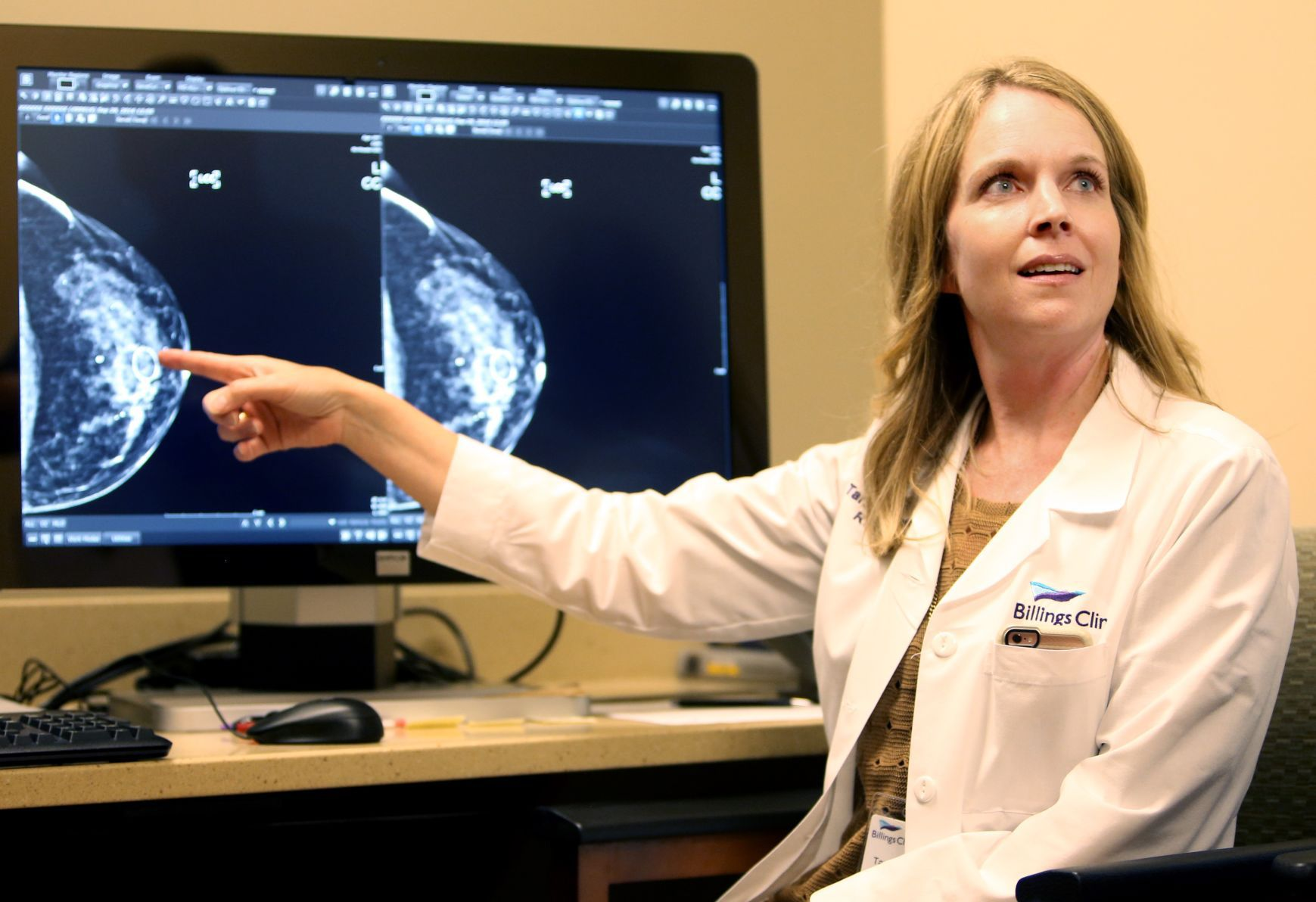 Picture perfect: Training helps mammography techs improve imaging ...