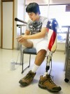 Firdavs Temirov prepares to put  on his prosthetic leg