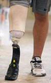 Koni Dole walks on a prosthetic leg