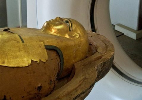 Don't blame fast food: Mummies had heart disease