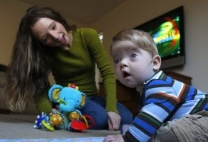 Surgery relieves infant's skull condition
