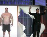 NBC's 'Biggest Loser' considered surgery
