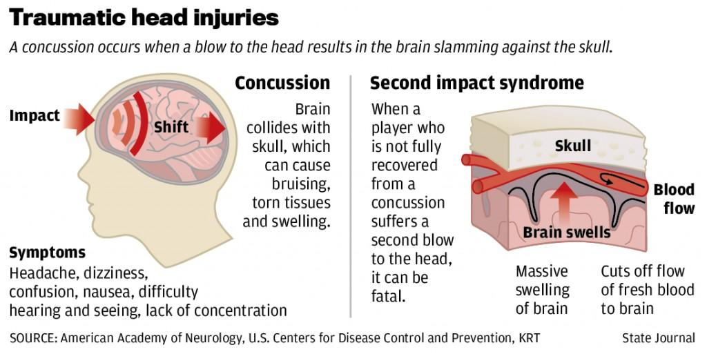 Image result for concussion