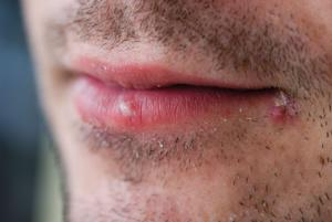 Herpes (Cold Sore)