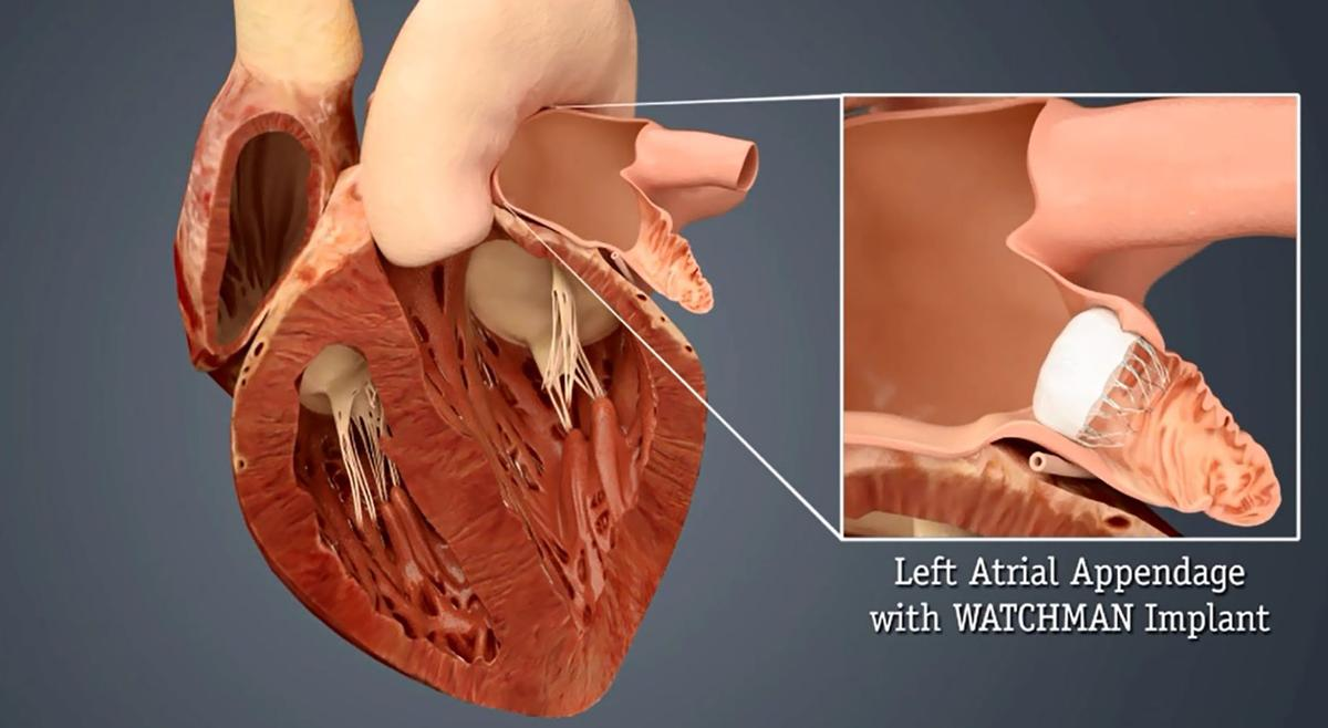Red Lobster Lincoln Ne Nebraska Heart First In State To Implant Stroke Reducing Device