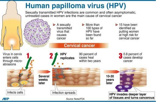 Hpv virus vocal cords