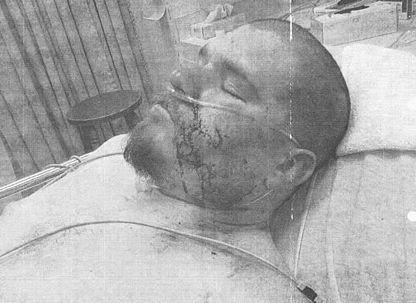 Man bit in face by Lodi police dog files suit against city, six officers