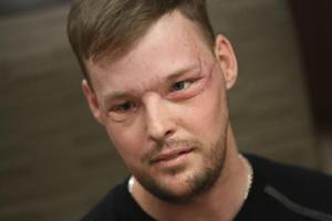 Wyoming man receives successful face transplant