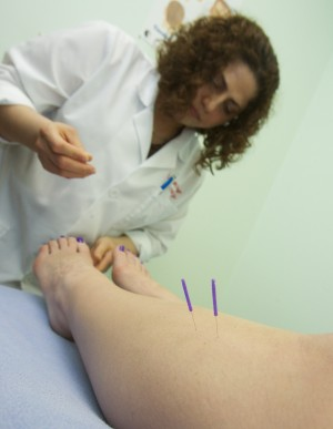 Acupuncture beneficial for mental health
