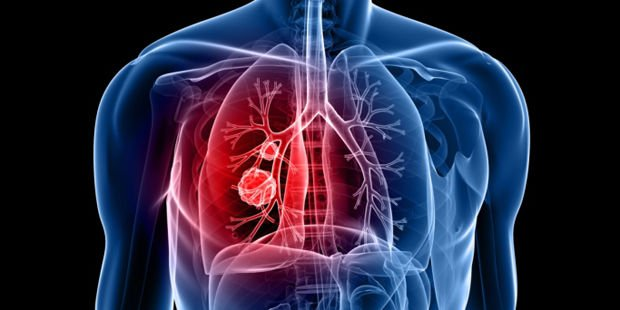 Franciscan Alliance Expands Lung Cancer Screening Program
