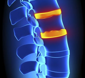 Spinal fusion improves quality of life for victims of trauma, arthritis and pain