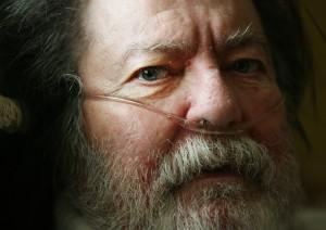 VA ceases benefits for veteran suffering ailments linked to Agent Orange