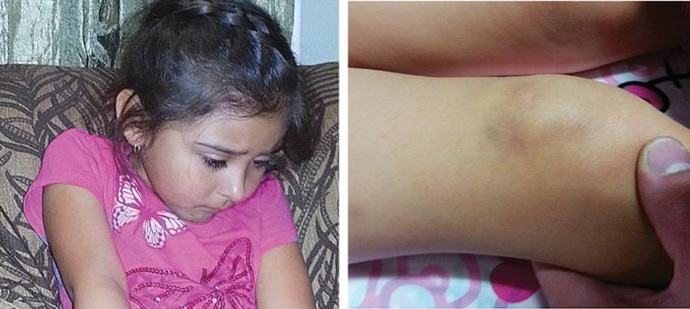 Bus driver injured my daughter, mom says 1
