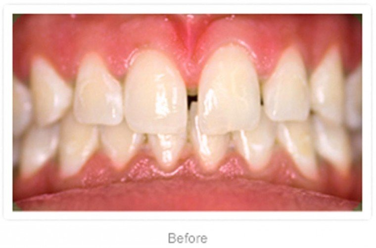 Hollywood Smile Dental will make your teeth sparkle  1