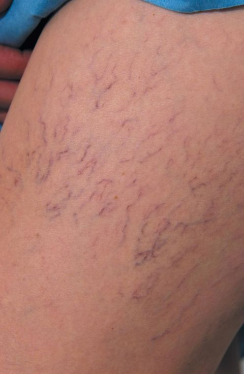 Say goodbye to unwanted varicose veins 1