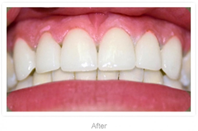 Hollywood Smile Dental will make your teeth sparkle  2