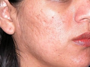 how to get rid of old chicken pox scars