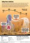 Valley Fever infographic