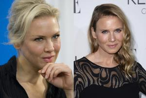 Photos: Renee Zellweger before and after