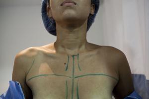 En Venezuela también escasean implantes de seno