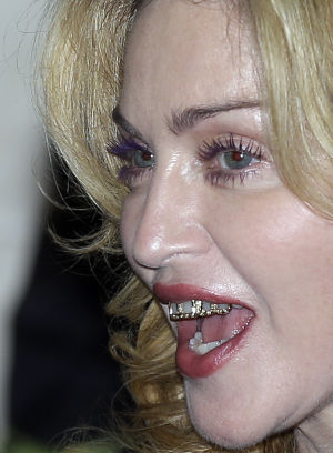 Photo: Madonna's tooth jewelry — flattering or not?