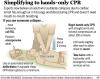 American Heart Association endorses UA's 'new CPR'