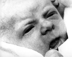 Photos: 35 years of 'test tube' babies