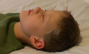 Active Life Acupuncture - Hitting the right spot every time
