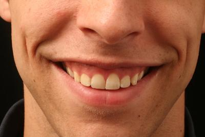 What causes gummy smiles
