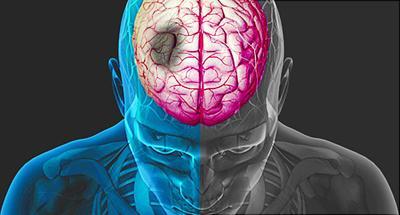 Despite scary stats, stroke is not a death sentence
