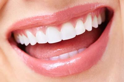 Tooth whitening options