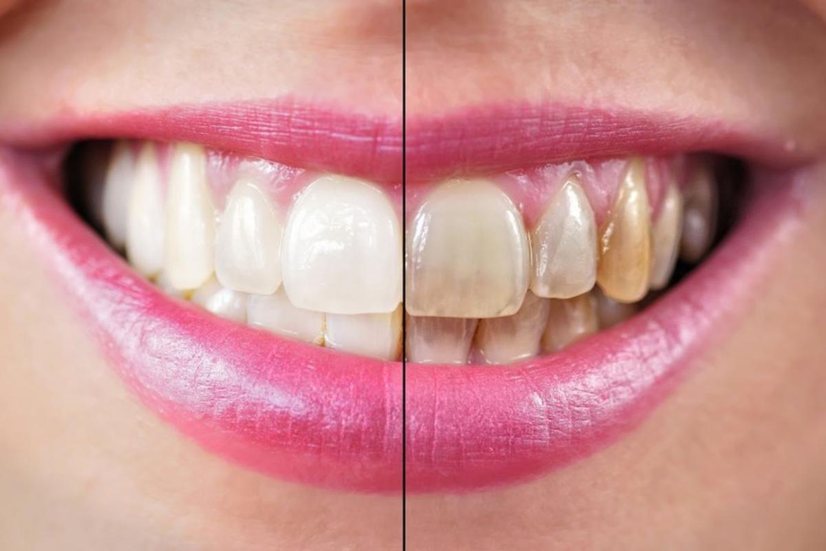 Alcohol: How does it affect the teeth?