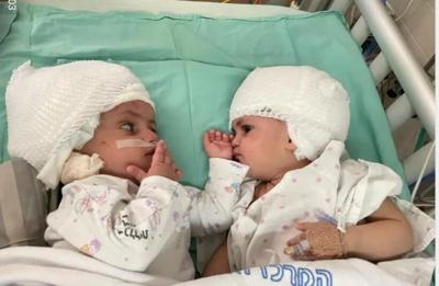 Credit JNS; Photo Credit: Soroka University Medical Center  The first face-to-face meeting of newly separated conjoined twins. The operation to separate them was completed at Soroka-University Medical Center in Beersheba last month.