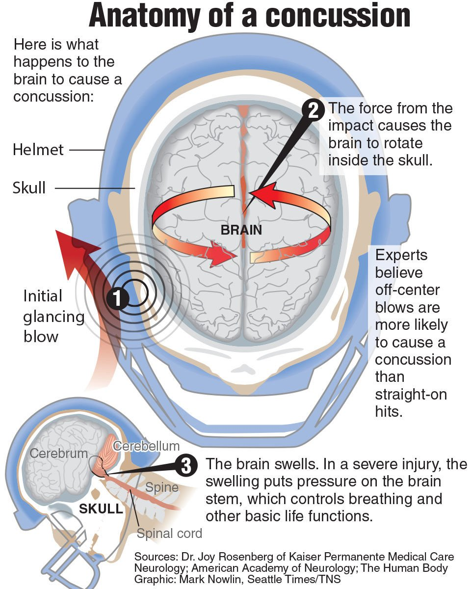 Football: Concussions are serious issue for the prep game, too ...