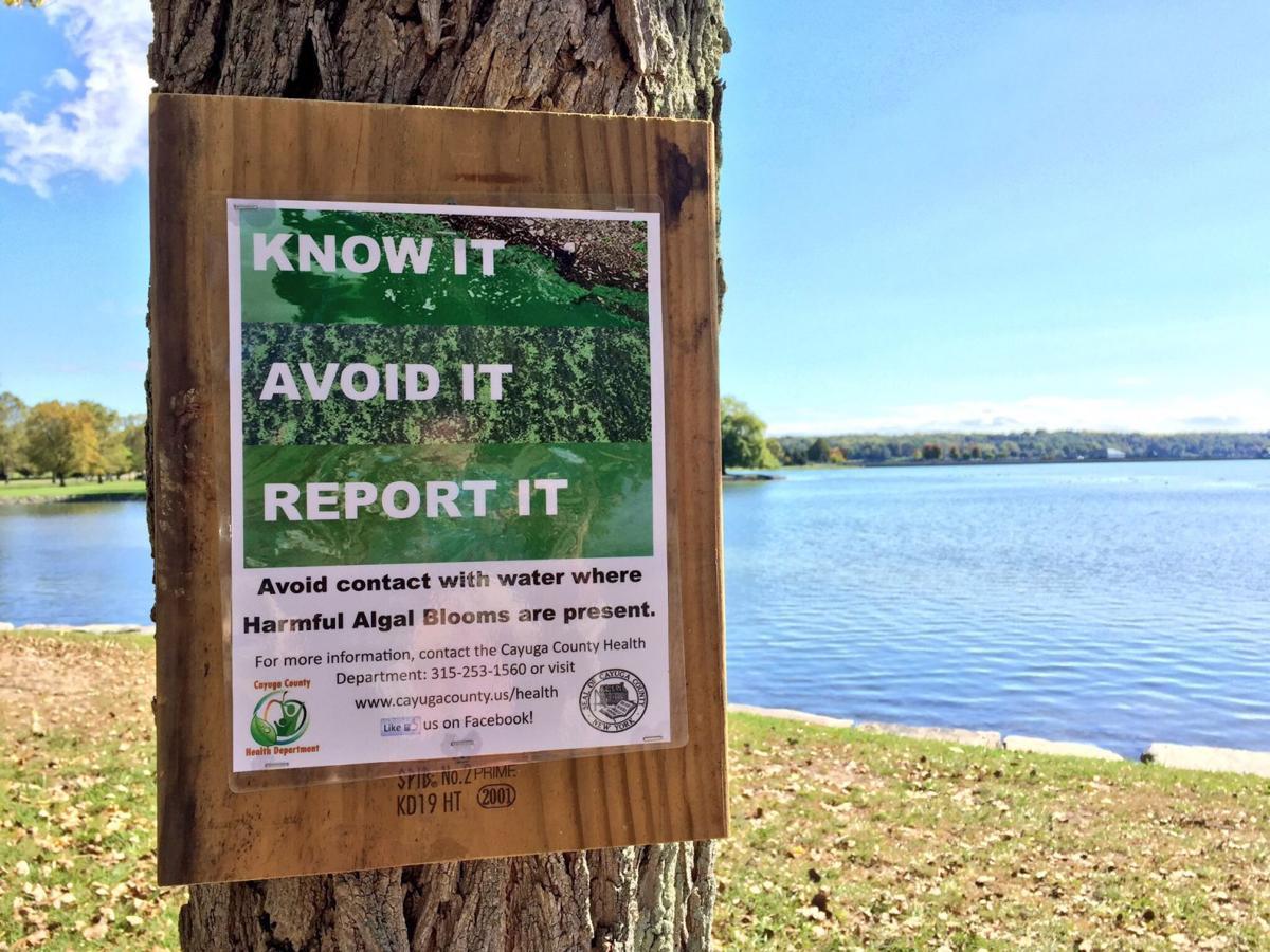 Harmful algal bloom signs