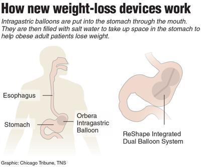 Many Experts Optimistic About Fda Approved Weight Loss Balloons