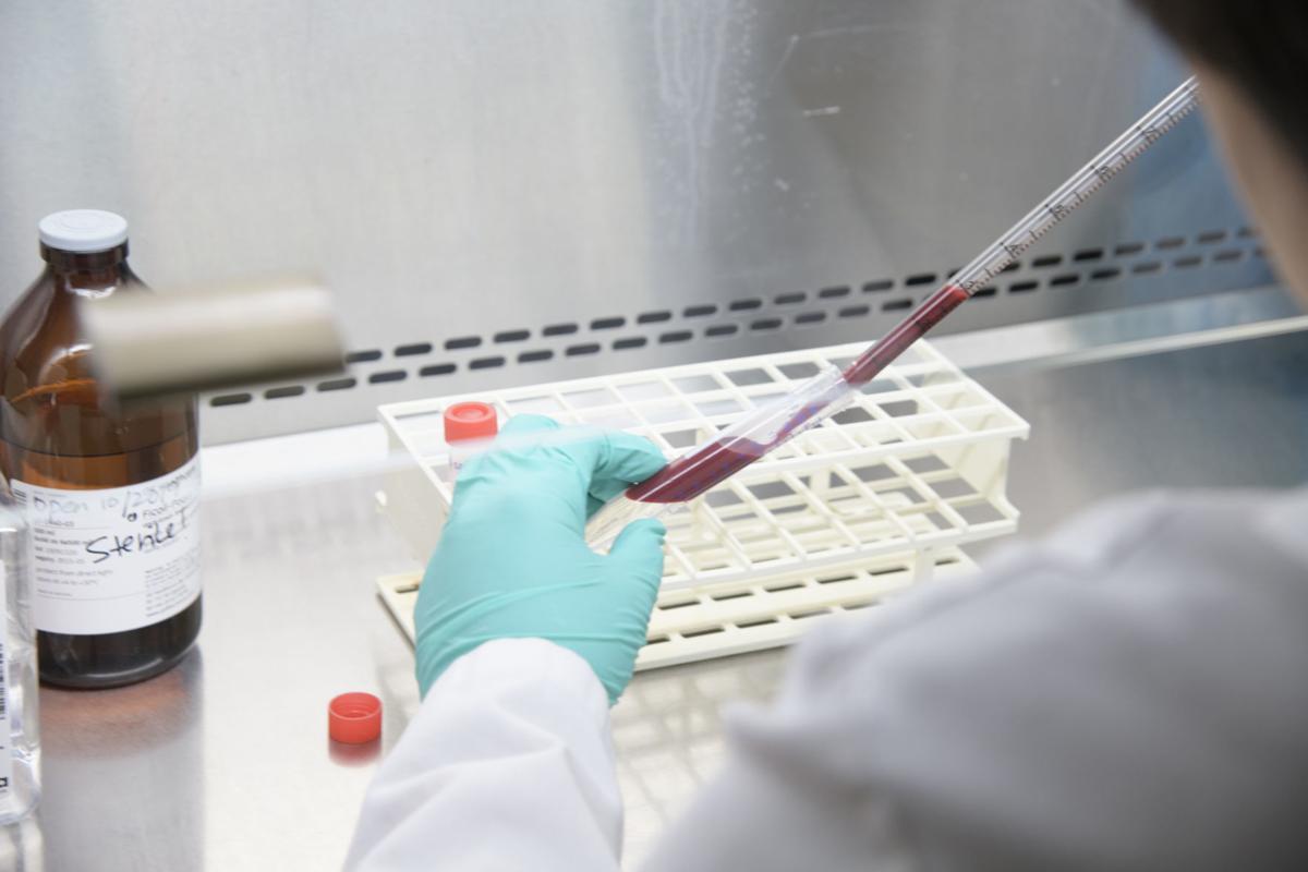 UA COVID-19 Antibody Testing
