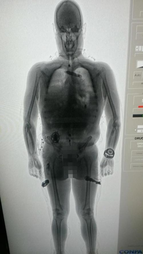 Jails consider body scan devices to curtail contraband