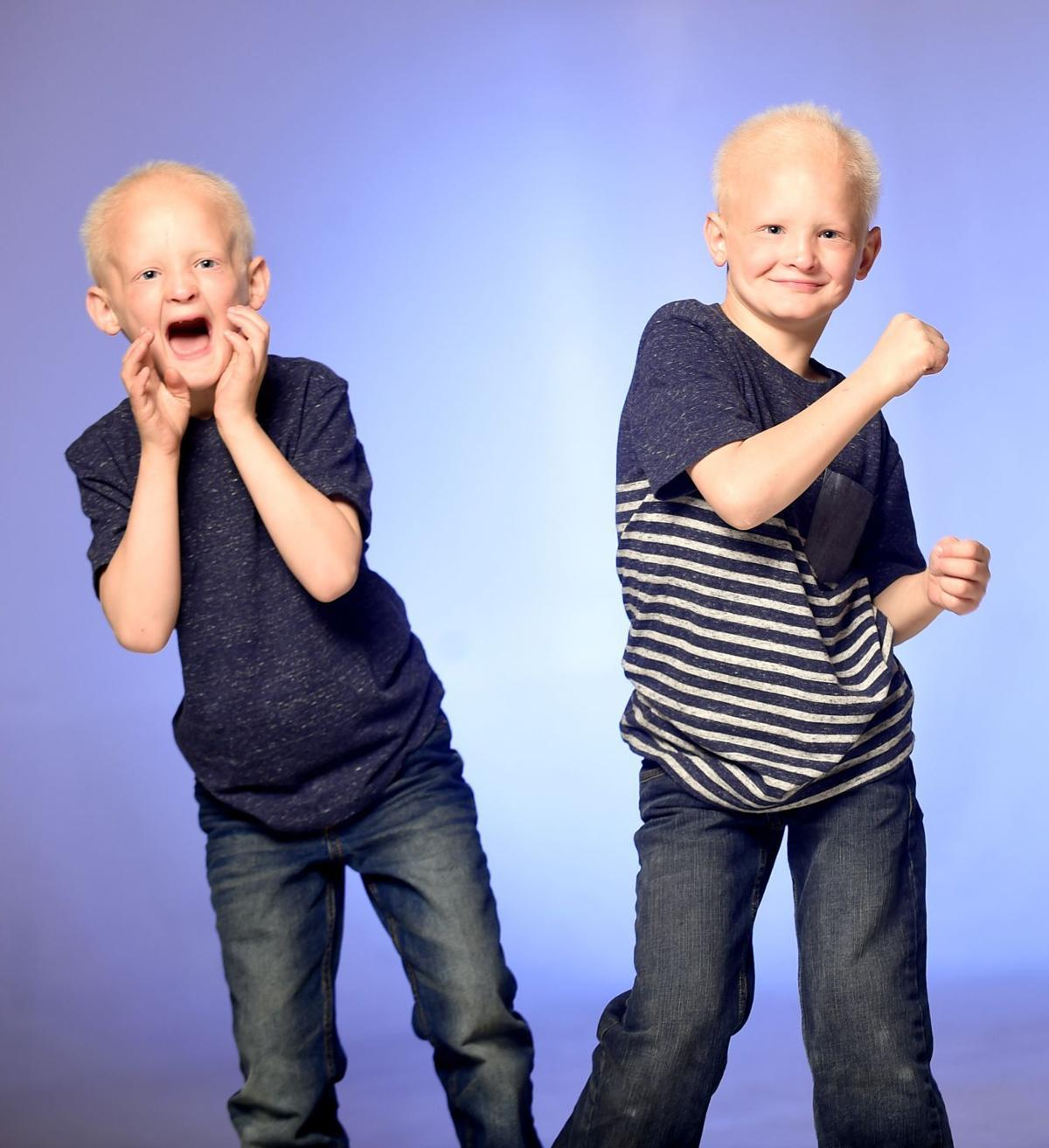 Billings twins with rare disorder make television debut on