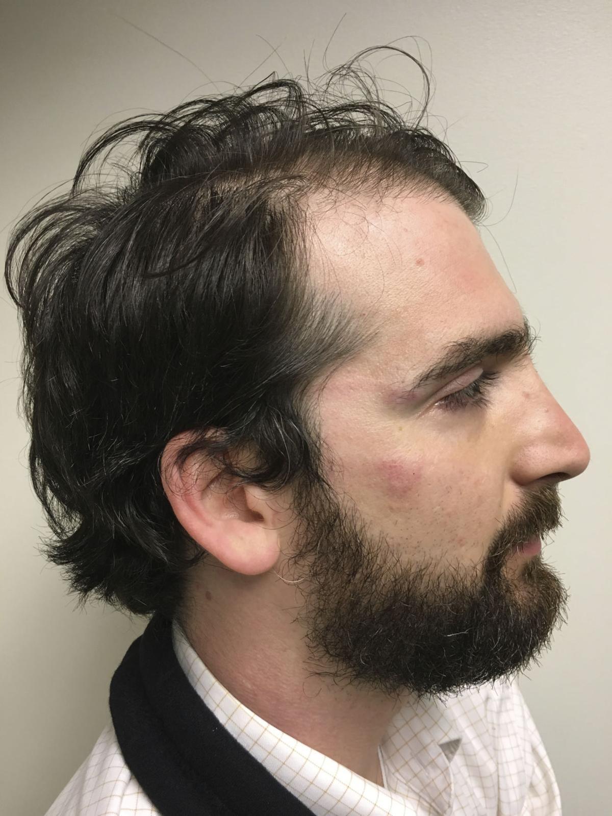 Montana congressman misled investigators in assault case