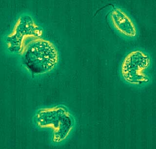Park's microbes could be deadly