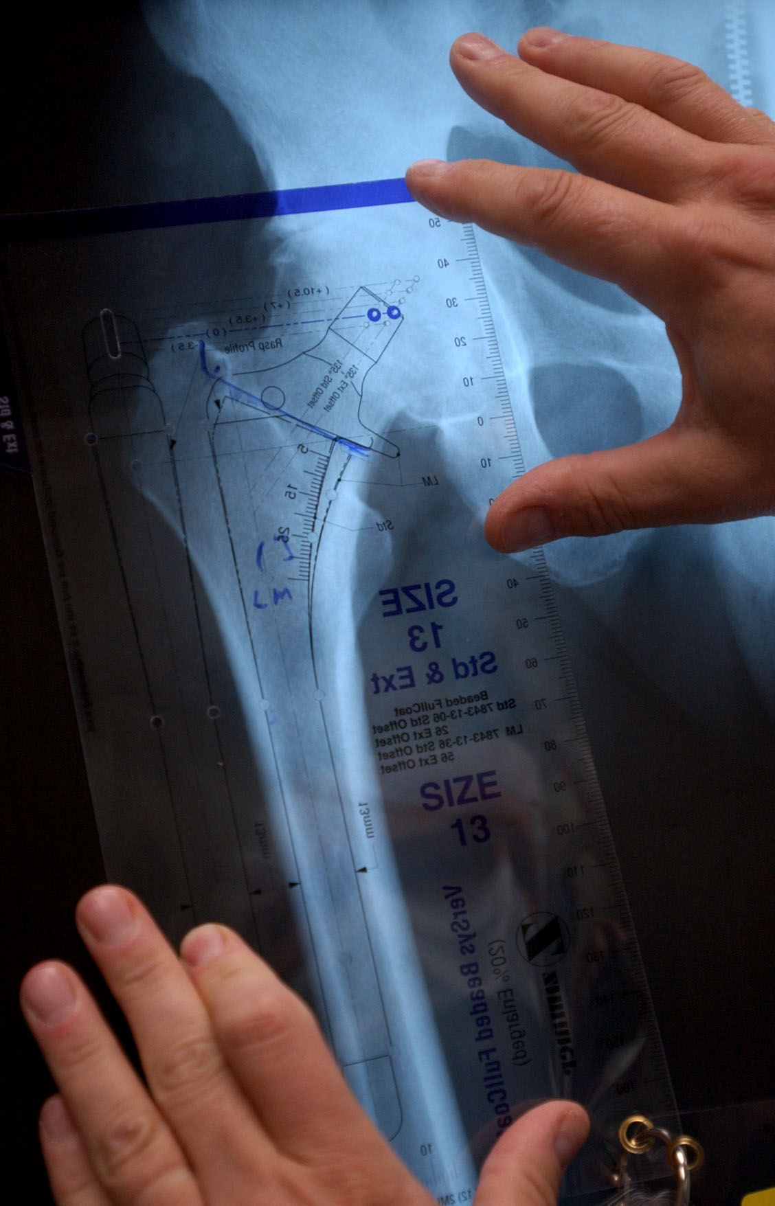 Lewistown man on full hip replacement I got my life back
