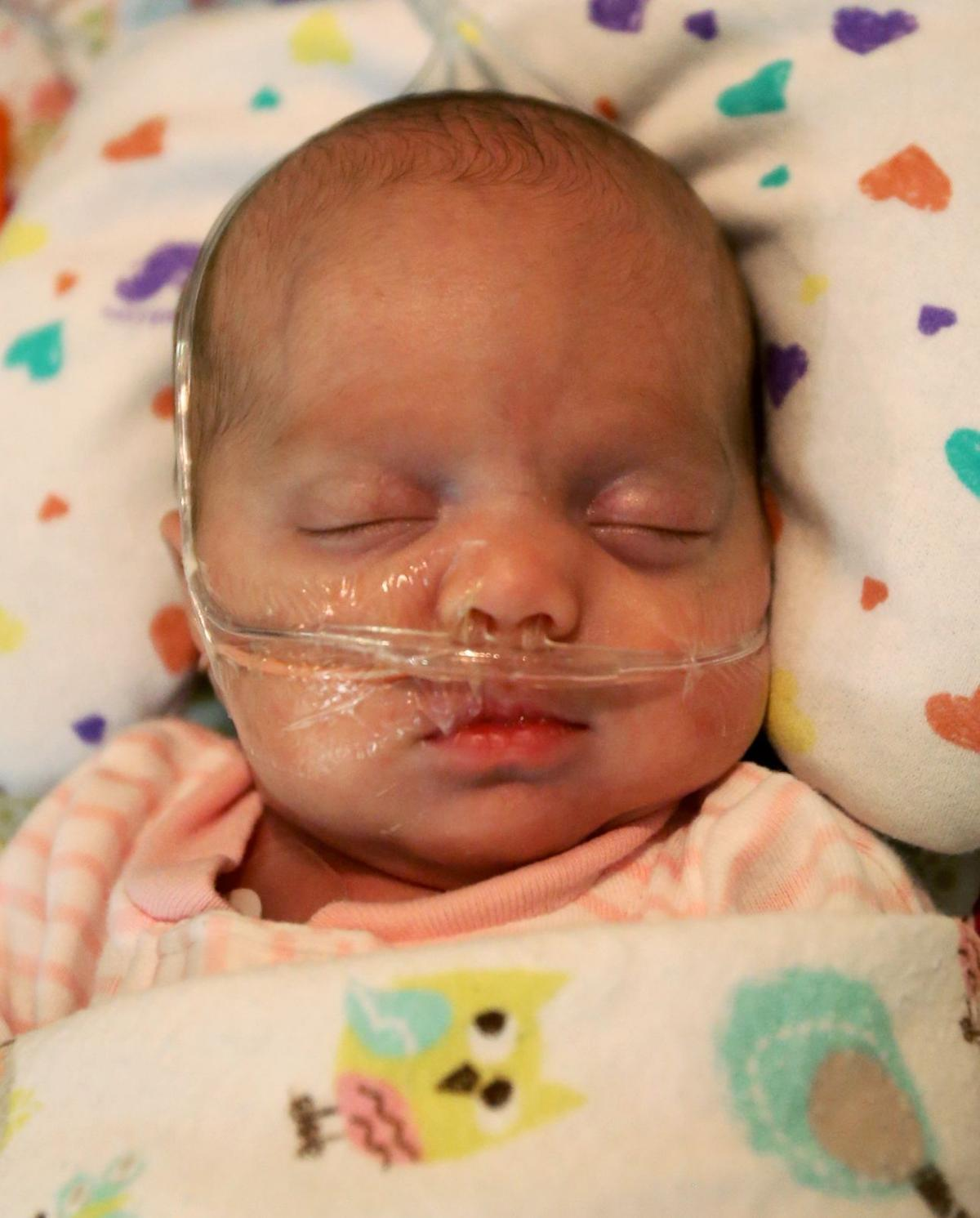 Baby girl born early at 26 weeks and less than 3 pounds ...