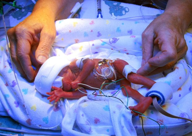 After 5 months, premature baby weighs in at nearly 8 ...