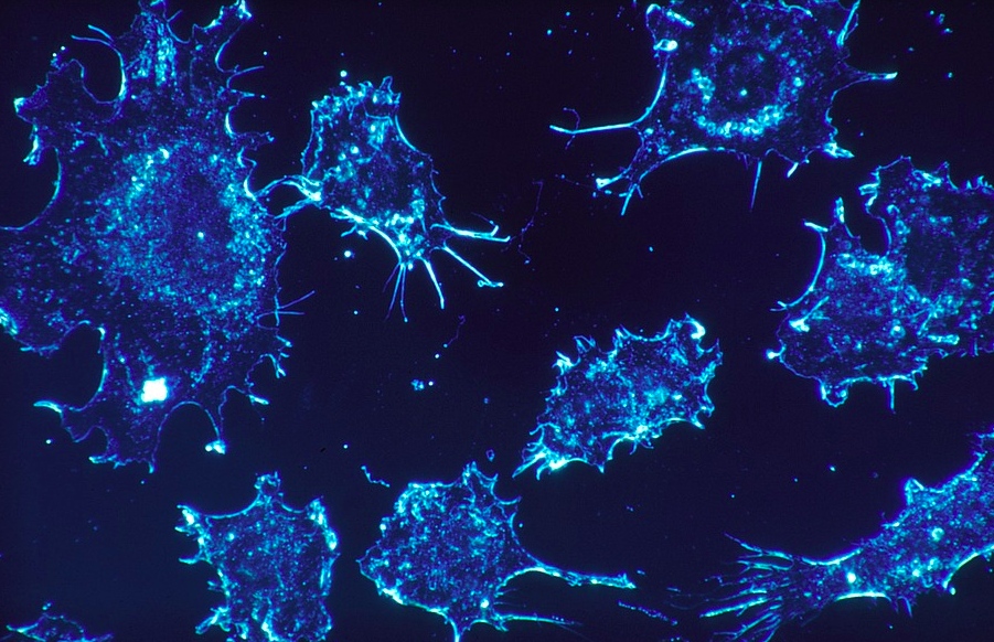 Types of cancer on the rise
