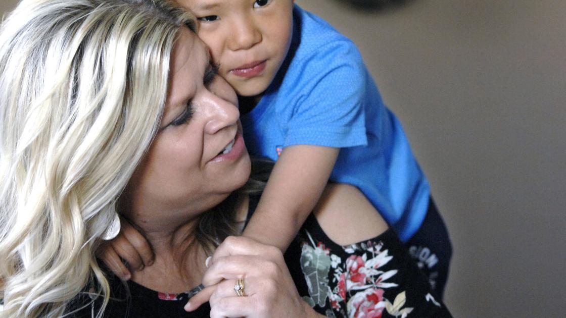 Boy born without thumbs, radius undergoes fourth surgery in Bismarck | Bismarck | bismarcktribune.com