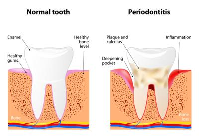 Gum Disease Could Increase Your Cancer Risk